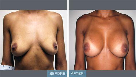 breast reconstruction dr talmor gif 1200x680