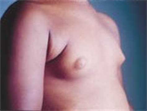 early breast development in young girls jpg 177x134