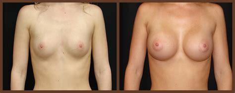Breast augmentation in virginia beach jpg 1134x450