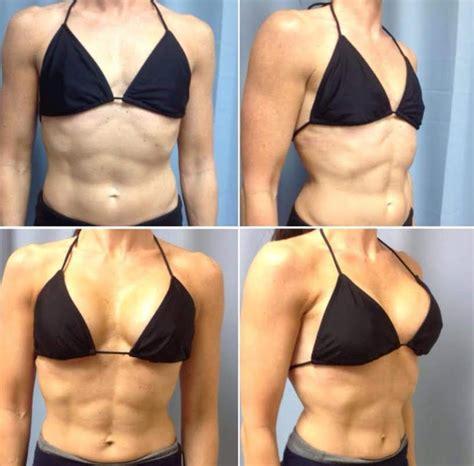 Orange county breast augmentation dr andres taleisnik jpg 816x803
